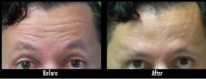 Los Angeles male patient before and after dysport