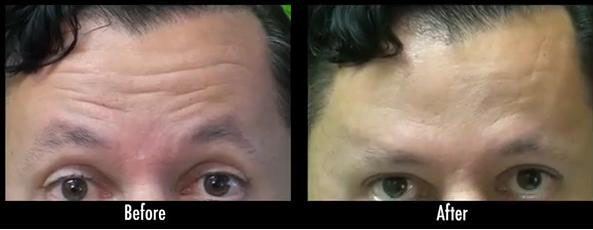 Dysport for Forehead Lines| Male Patient Before and After His Treatment