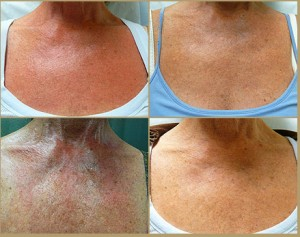 Los Angeles patient before and after poikiloderma treatment