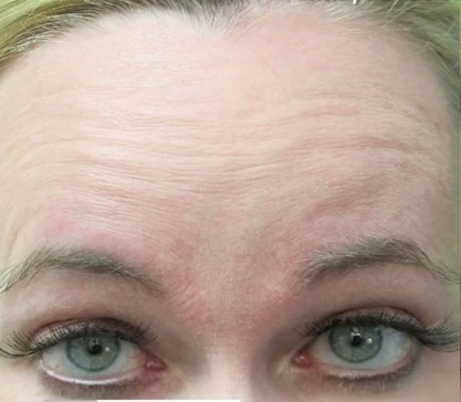 Patient With Forehead Wrinkles Before Botox Treatment