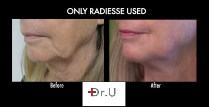 Close Up| Jowl Reduction Without Surgery - Radiesse Used on Los Angeles Patient