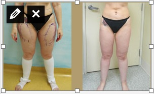 Los Angeles Patient- Liposuction for Thighs