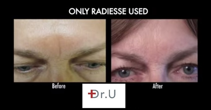 Frown line treatment between brows| Use of Radiesse
