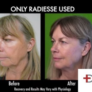 radiesse-jowl-removal-non-surgical