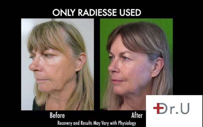 Jowl Removal Without Surgery| Radiesse Treatment on Los Angeles Patient