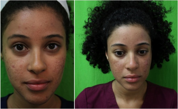 Lasers for Acne Scars| Safe Laser For Dark Skin