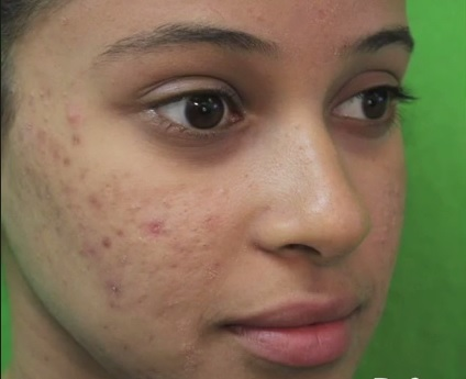 Acne Condition in Young Woman