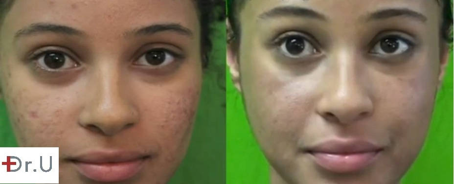 Patient's Face| Before and After Acne Treatment With Spectra Laser