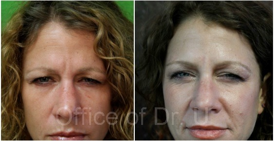 Dysport results|frown line between brow| Orange County