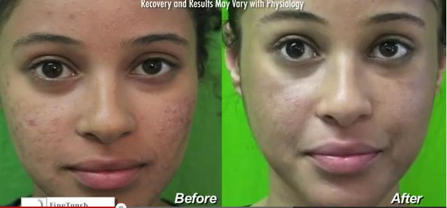 Acne scar treatment before and after Fraxel dual in a los angeles patient