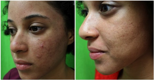 Laser treatment| Fraxel Dual For Acne Scarring on Ethnic Skin