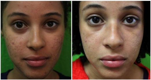 Patient Results| Acne Scar Reduction - Before & After Images