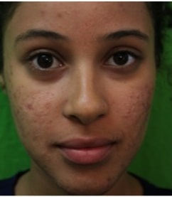 Acne  Finding A Treatment for Stubborn Conditions