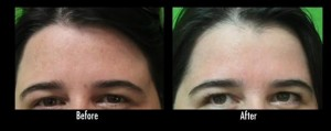 Los Angeles patient before and after her third treatment for acne scar tissue with Fraxel Dual