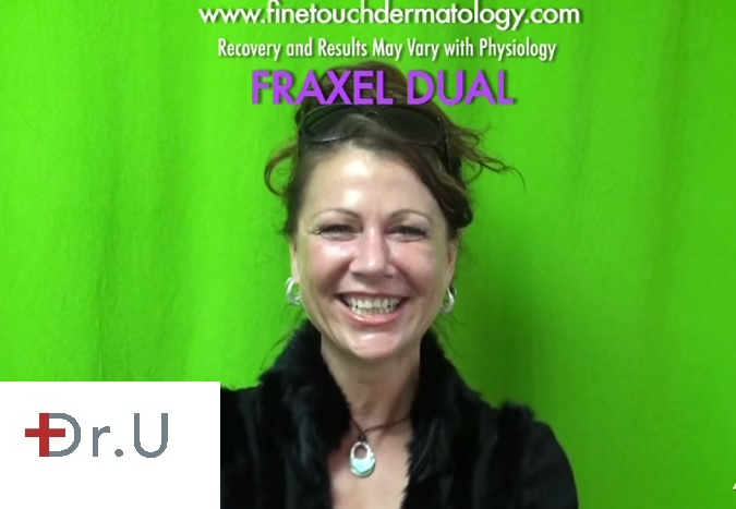Fraxel Dual Skin Treatment for Brown Spots| Happy Patient