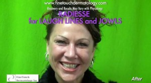 After Radiesse Treatment for Laugh Line in Los Angeles
