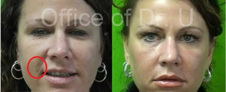 Age Spot and Skin Rejuventation| Los Angeles Patient Before and After Fraxel Dual