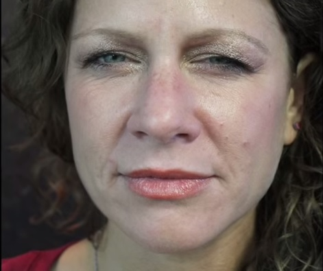 Before Lip Augmentation Treatment With Juvederm