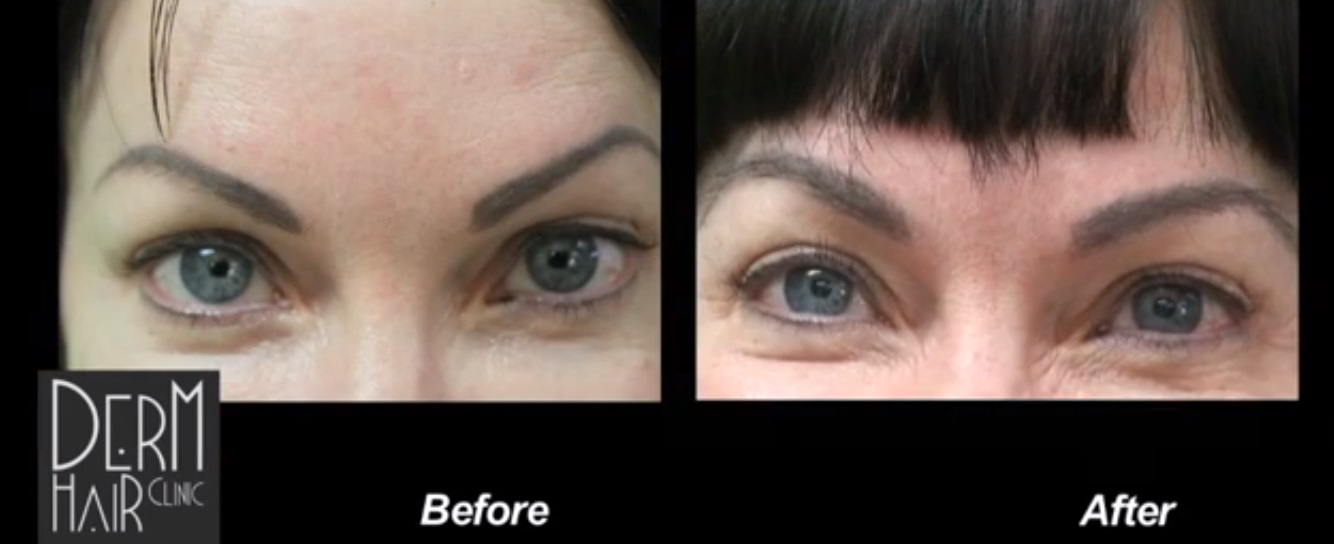 Eyebrow transplantation results