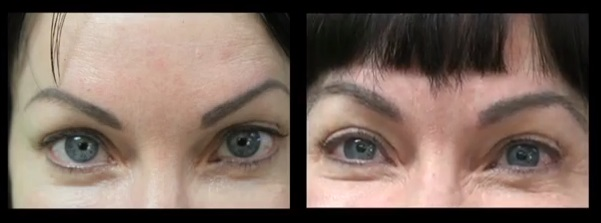 Eyebrow Transplant| UGraft and Nape Hair