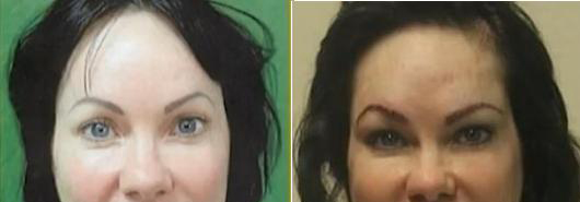 Before and After Eyebrow Procedure