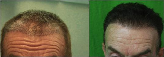 Hairline refinement with FUE.