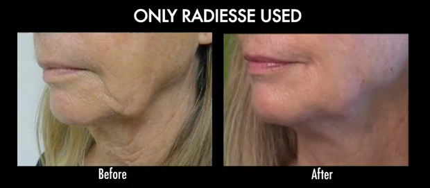 No Surgery Face Lift also known as Liquid facelift before and after: How to get a more defined lower face without surgery.