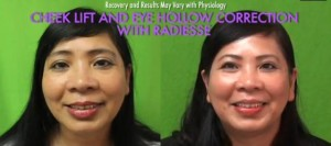 Non Surgical Cheek Lift with Radiesse