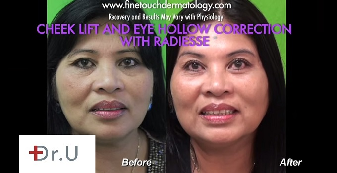 Side By Side Comparison  Patient Before and After Non-Surgical Cheek Lift