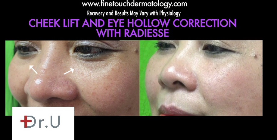 Radiesse for Dark Under Eye Circles| Before and After