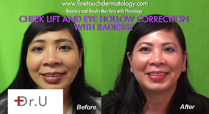 Non-Surgical Cheek Lift Results| Los Angeles Patient
