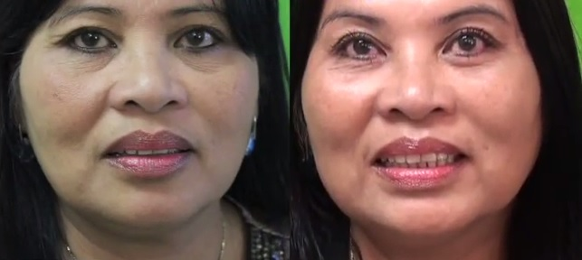 Cheek Lift Without Surgery| Before and After Radiesse