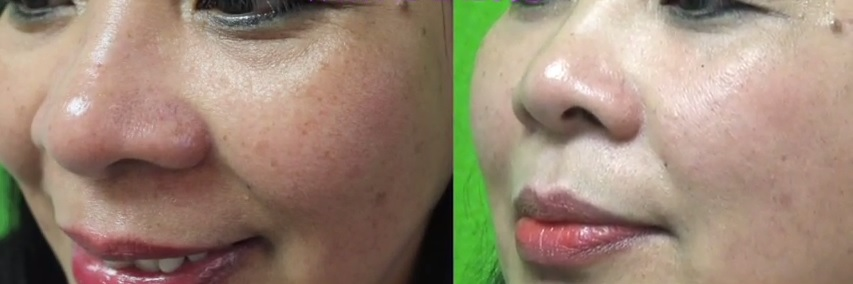 Non-Surgical Cheek Lift| Patient Photos- Radiesse