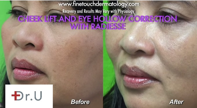 Side View of Patient  Radiesse for Non-Surgical Cheek Lift