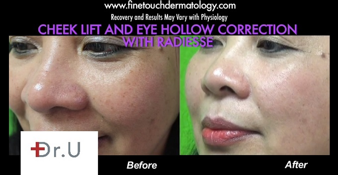 Non-Surgical Cheek Lift| Three Quarters View of Patient's Face
