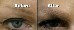 Before and After 2 Eyebrow Hair Transplant