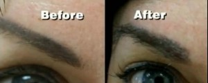 Before and After Eyebrow Transplant in Reondo Beach CA