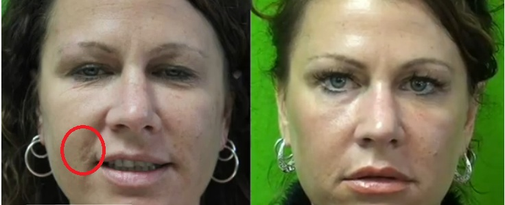 Fraxel Dual Services| Clear Complexion|Effective Treatment For Brown Spots