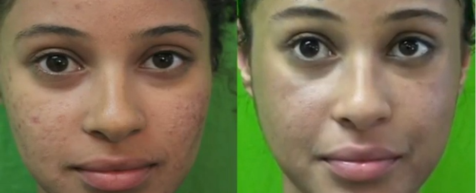 Before and After Acne Treatment in Manhattan Beach CA