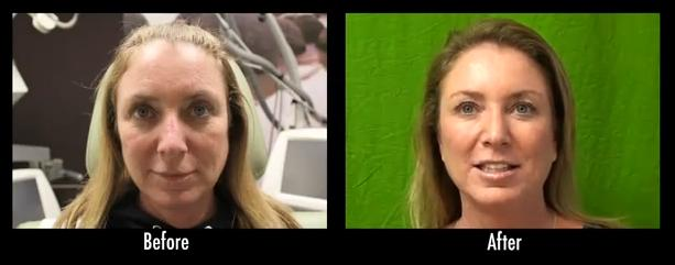 lLos Angeles Patient - Botox Results
