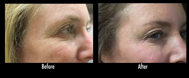 Crows Feet| Effects of Botox on Los Angeles Patient