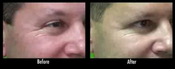 Crows Feet Treatment With Dysport| Results on Male Patient