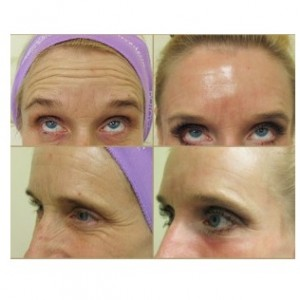 Botox results for crows feet wrinkles & frown lines| Patient results- before and after