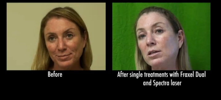 Fraxel Dual & Spectra Treatment Results