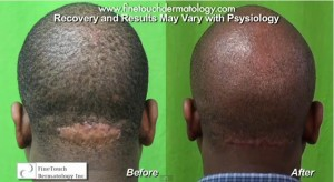 razor bumps back of head before and after treatment