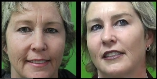 Before and After Brooke Shields Inspired Eyebrow Transplant Surgery