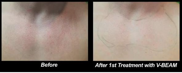 Rosacea Laser Treatment| Close Up View of Chest