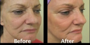 age spots treatment results from fraxel repair laser in a los angeles patient