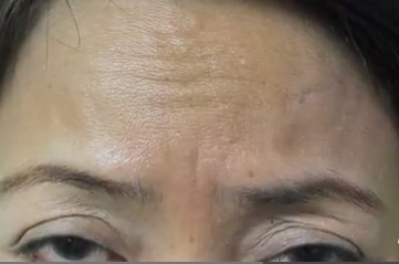los-angeles patient treat forehead lines with Belotero