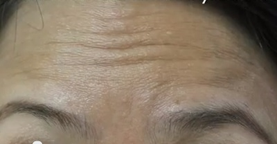forehead before belotero treatment for wrinkle lines
